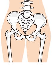 骨盤の歪みイラスト