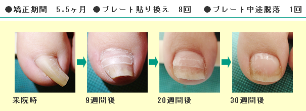 before&after画像